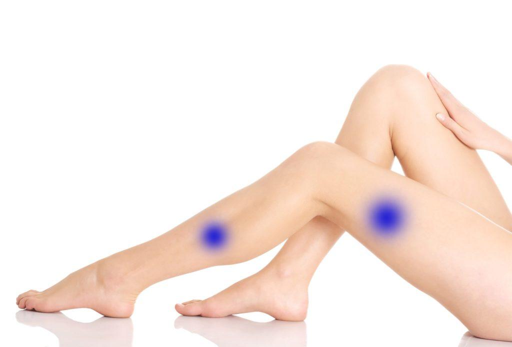 Man sieht die Beine einer jungen Frau mit grafisch eingezeichneten blauen Flecken.