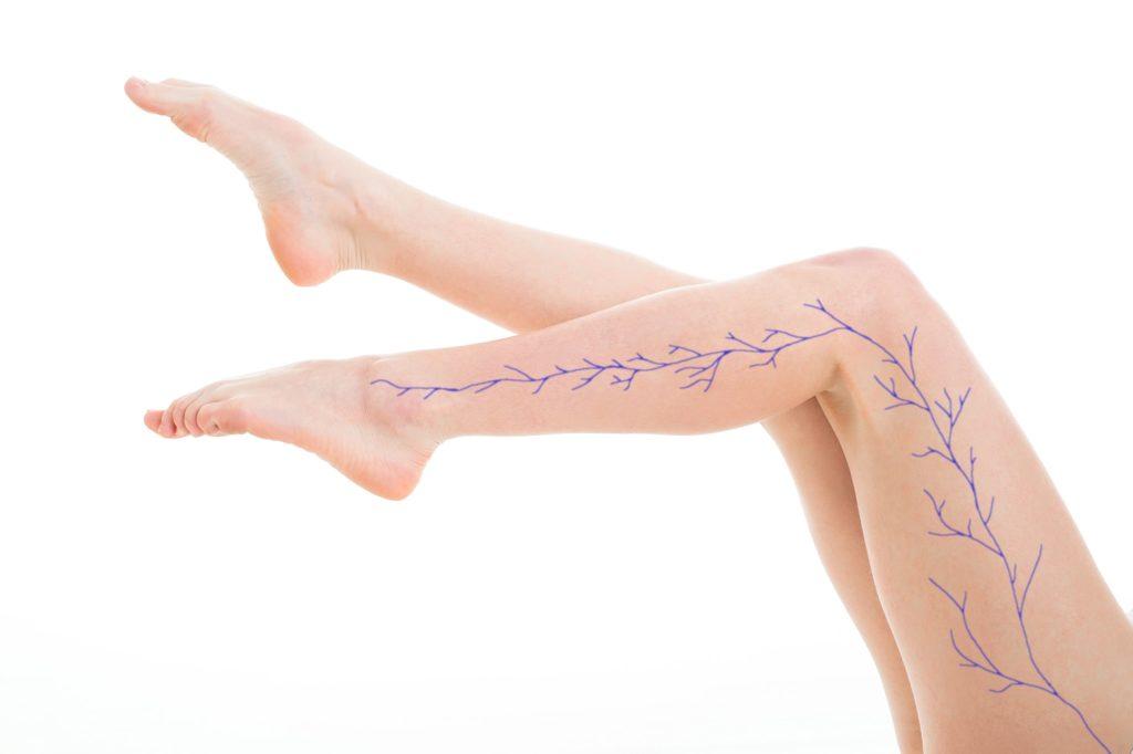 Das Bild zeigt die Beine einer jungen Frau mit grafisch eingezeichneten Krampfadern.