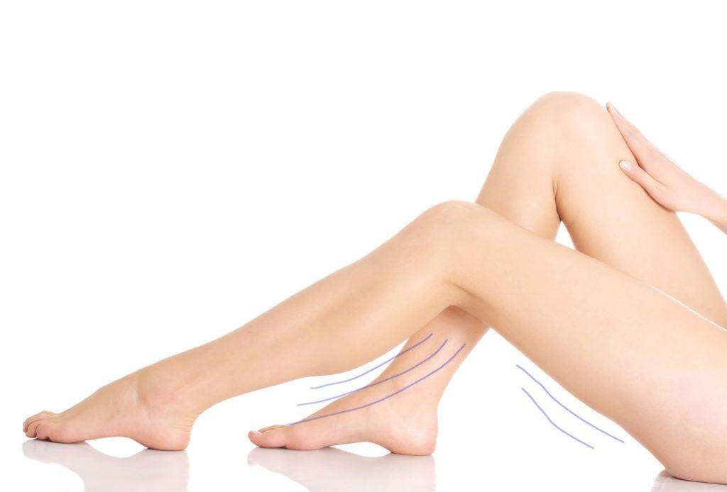 Das Bild zeigt die Beine einer jungen Frau. Mit grafischen Linien wird gezeigt, dass die Frau schwere und geschwollene Beine hat.